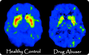 ... the Human Brain - Information on How Substance Abuse Damages the Brain